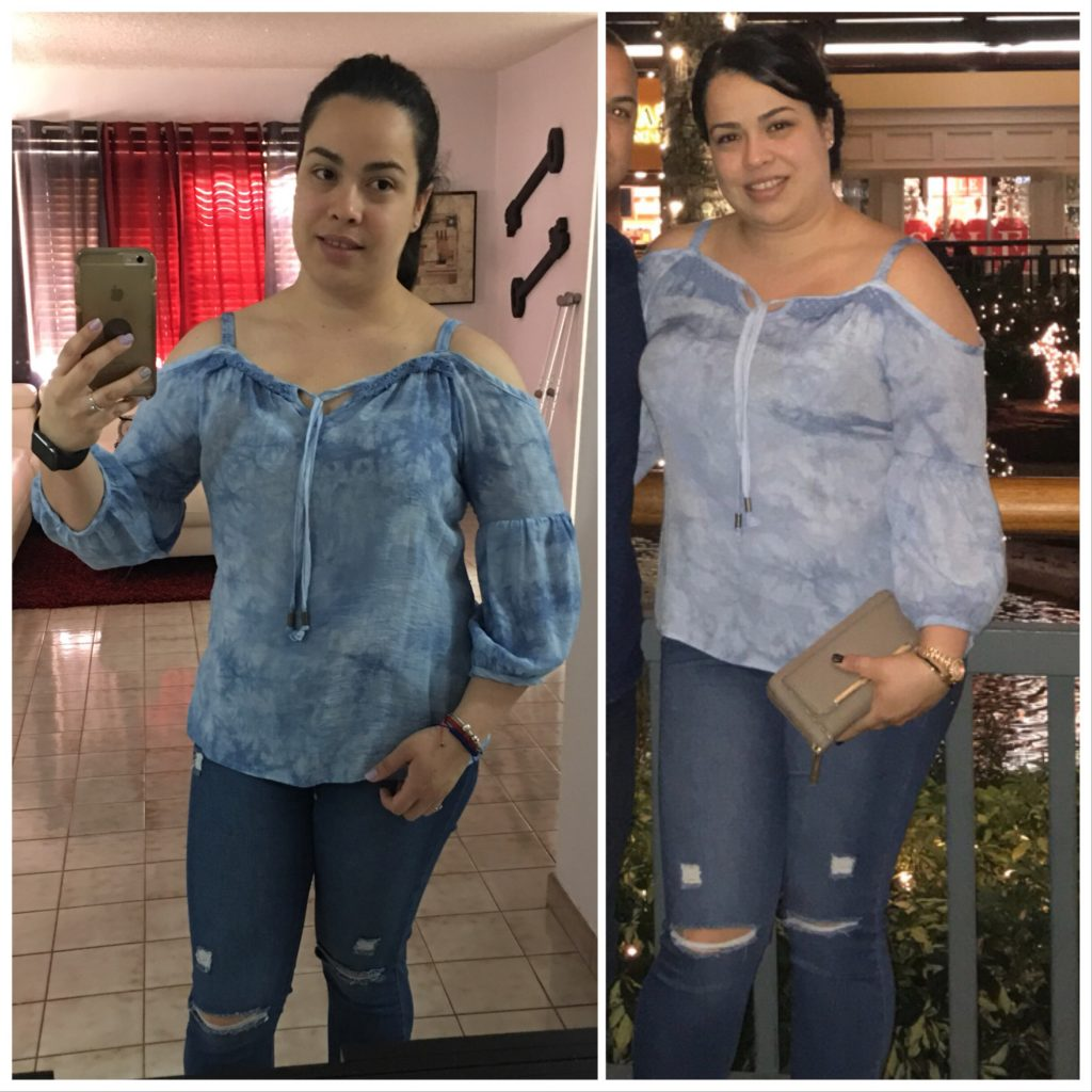 Hcg Diet Pictures Amp Results At Hcg Diet Miami 1 Hcg